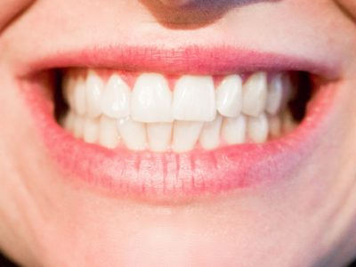 What is so good about Invisalign?