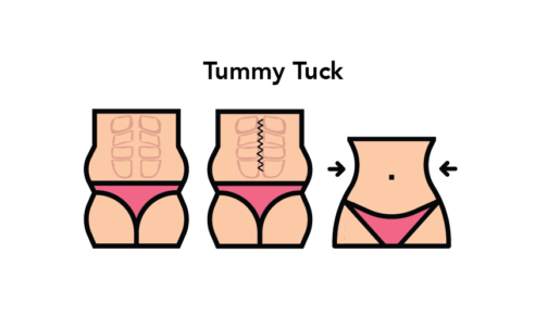 Difference between Tummy Tuck and Liposuction
