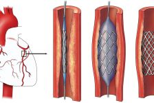 Coronary Angioplasty Procedure Description