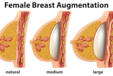 Breast Augmentation Procedure Description