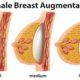 Breast Augmentation Procedure Description