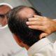Hair Transplant Procedure Description