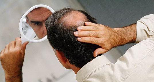 Hair Transplant Procedure Description  Mymeditravel Knowledge-2884