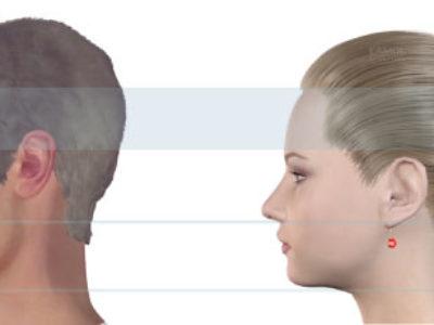 Facial Feminization Surgery (FFS) Procedure Description