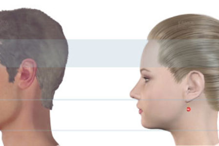 Facelift Procedure Description | MyMediTravel Articles