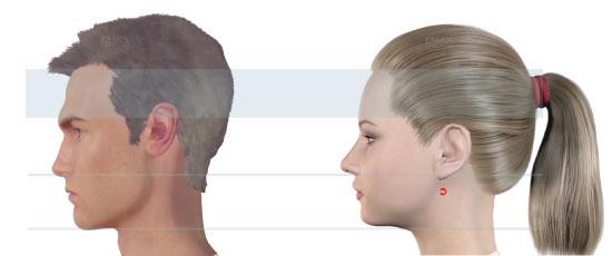 Facial Feminization Surgery Ffs Procedure Description  Mymeditravel Knowledge-5034