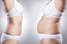 Vaser Liposuction Procedure Description