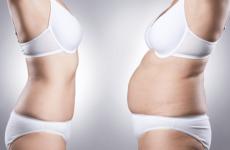 Vaser Liposuction Procedure Description