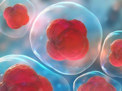 Stem Cell Therapy Procedure Description