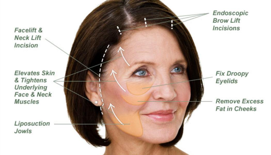 Facelift Procedure Description