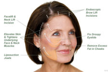 Facelift Procedure Description