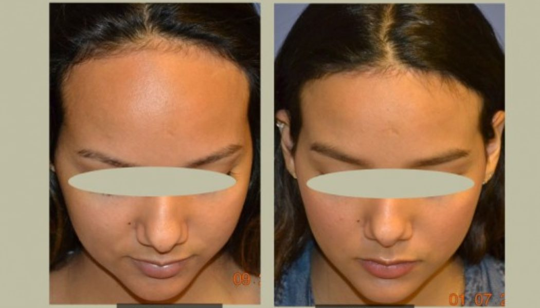 Hairline Lowering Surgery Procedure Description