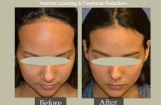 Hairline Lowering Surgery Procedure Description