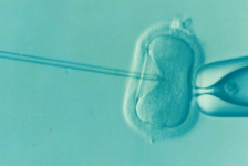 In Vitro Fertilization (IVF) Procedure Description