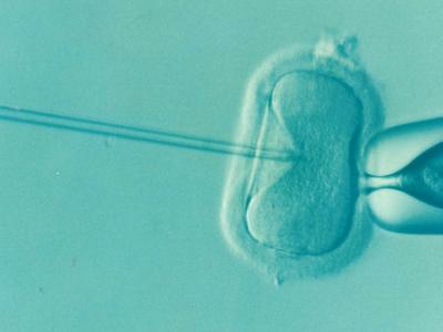 In Vitro Fertilization (IVF) Procedure Description