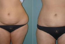 Liposuction Procedure Description