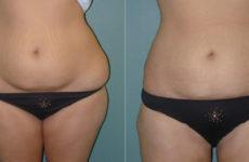 Liposuction Procedure Description