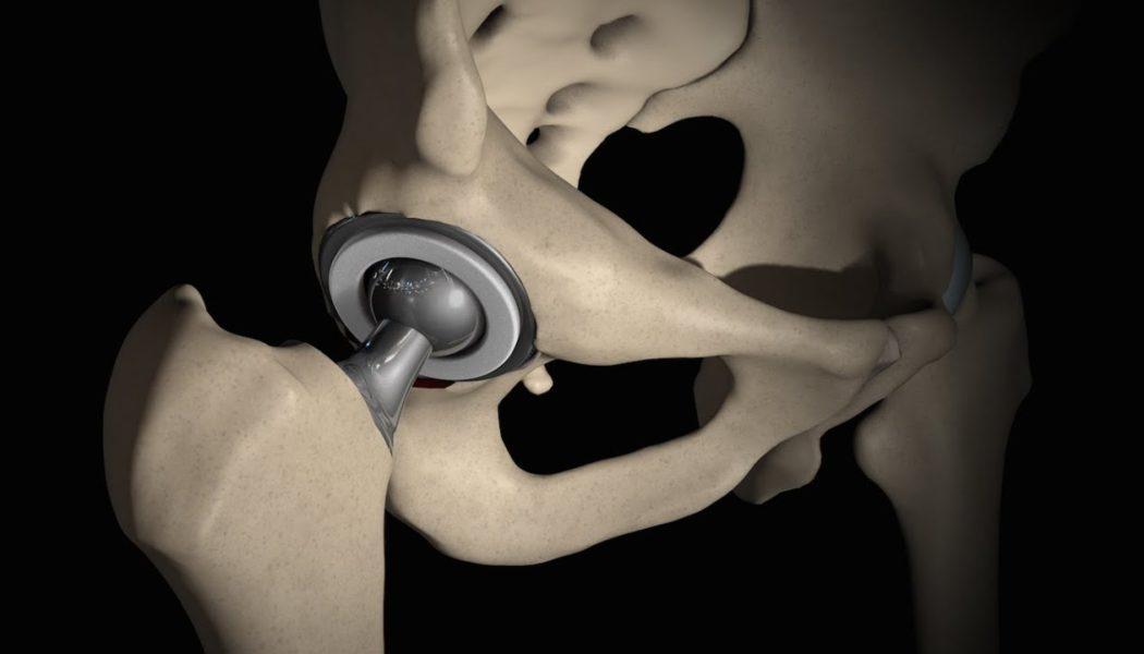 Hip Replacement Procedure Description