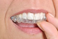 Invisalign Procedure Description