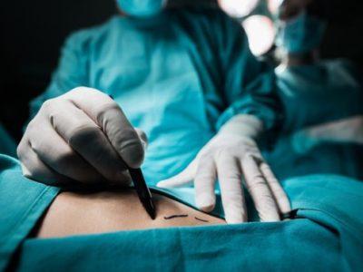 Anal Fistula Surgery Procedure Description
