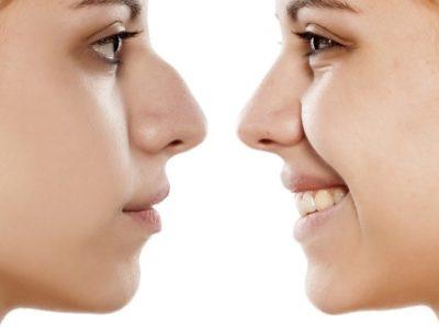 Nose Surgery Procedure Description