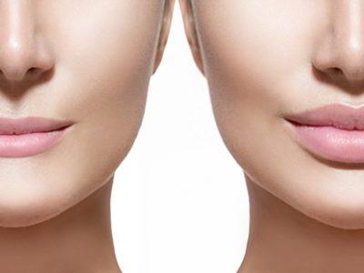 Lip Augmentation Procedure Description
