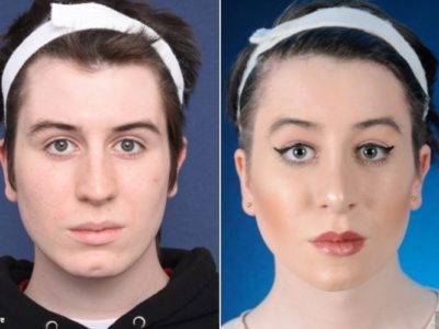 Top 3 Locations for a Facial Feminization Surgery (FFS) in Thailand