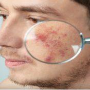 Skin Cancer Surgery Procedure Description