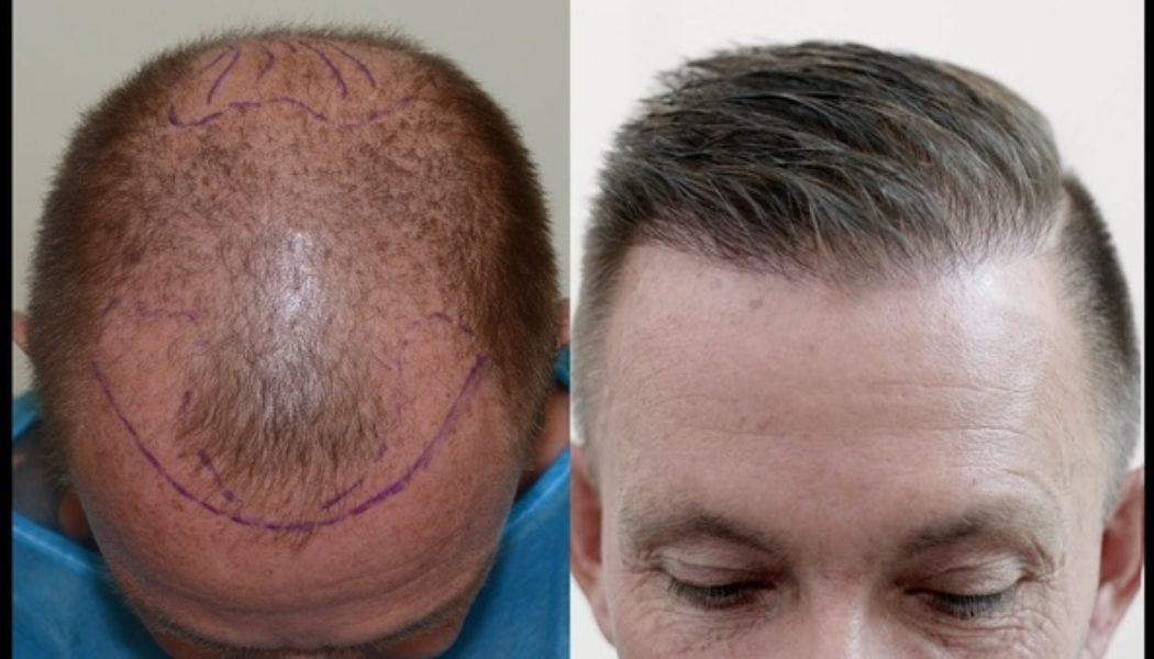 Top Ten Do's and Don'ts Before a Hair Transplant in Bangkok