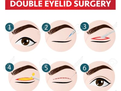 2020 Top Reasons Why You Would Have Double Eyelid Surgery in Thailand