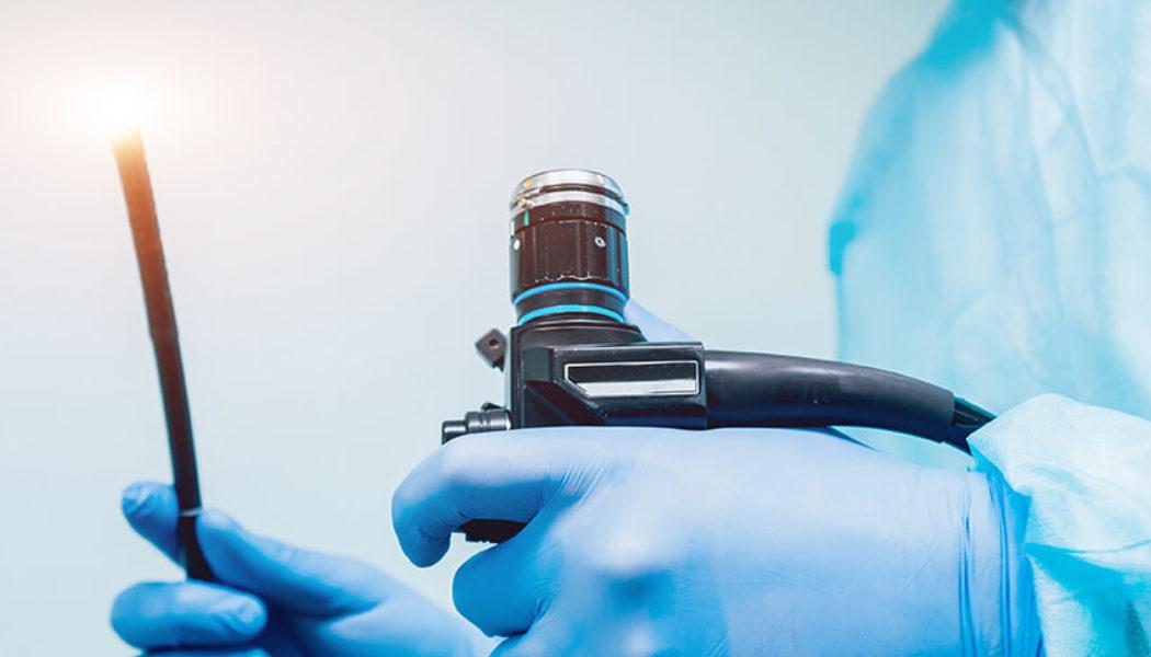 Endoscopic Ultrasound (EUS) Procedure Description