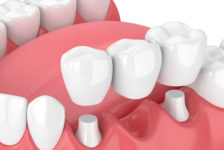 Dental Bridge Procedure Description
