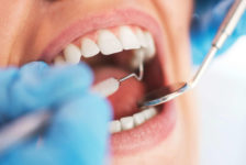 Root Canal Procedure Description