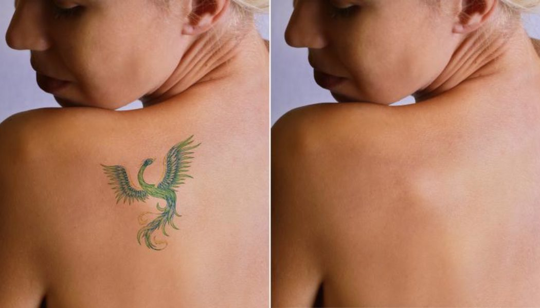 Laser Tattoo Removal Procedure Description