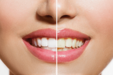 Teeth Whitening Procedure Description