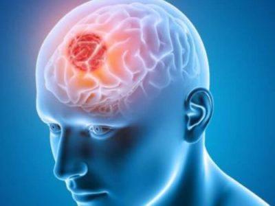 Brain Tumor Surgery Procedure Description