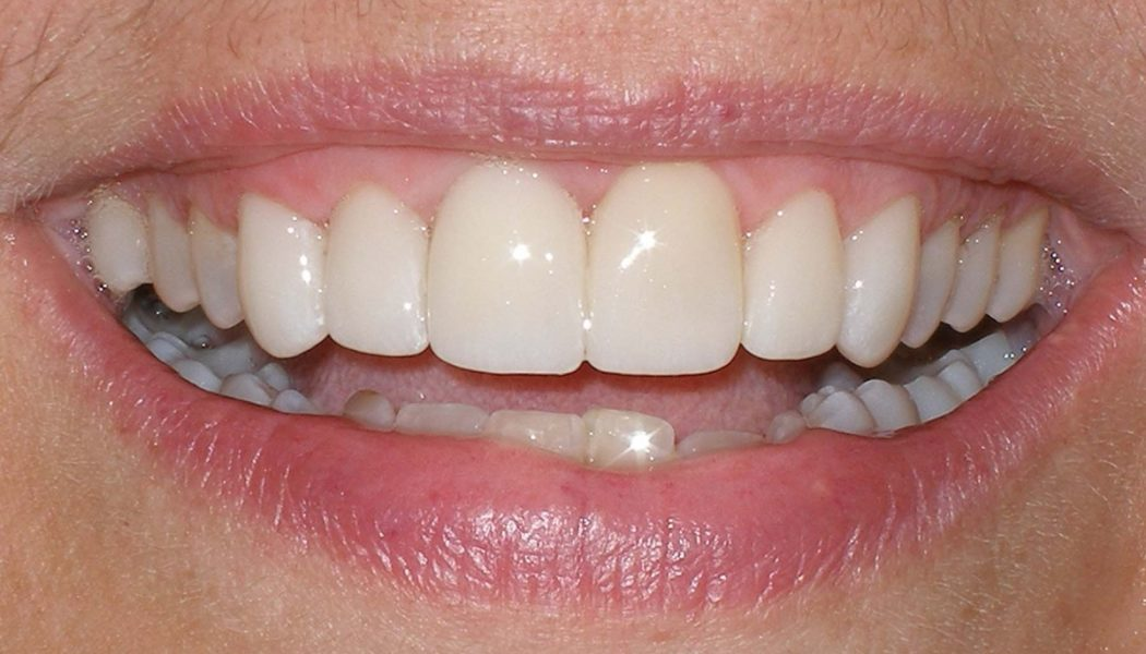 Top Tips on Having a Dental Crown in Thailand