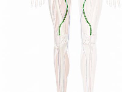 Femoral Artery Bypass Surgery Procedure Description