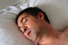 Sleep Apnea Surgery Procedure Description