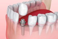 Top Tips on Having Dental Implants in Thailand