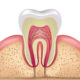 Top Tips on Having a Root Canal in Thailand