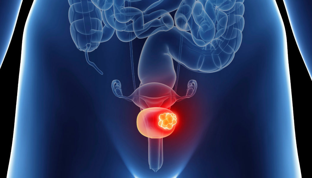 Bladder Cancer Treatment Procedure Description