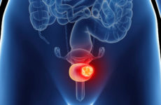 Bladder Cancer Treatment Procedure Description