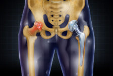 Hip Surgery Procedure Description
