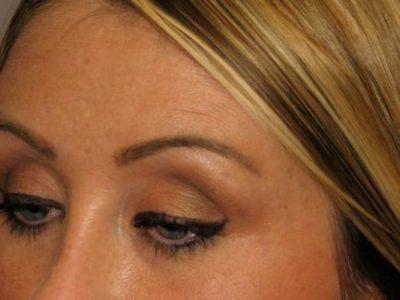 Eyebrow Hair Transplant Procedure Description