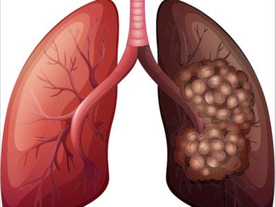 Lung Cancer Treatment Procedure Description