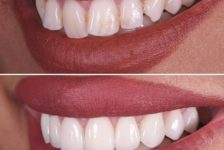 Top Facts Regarding Veneers in Thailand