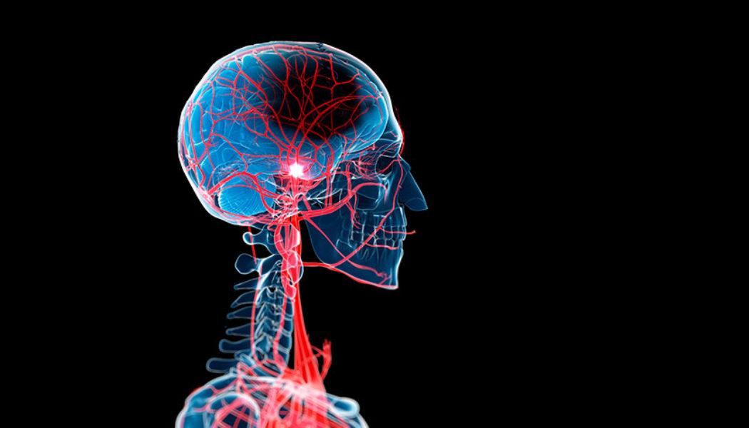 Brain Aneurysm Repair Procedure Description