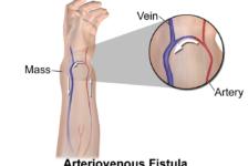 Atrioventricular Fistula Treatment Procedure Description