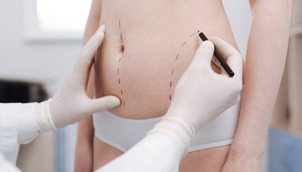 Liposuction FAQ